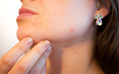 Acne And Diet – Foods That Cause Acne Indirectly